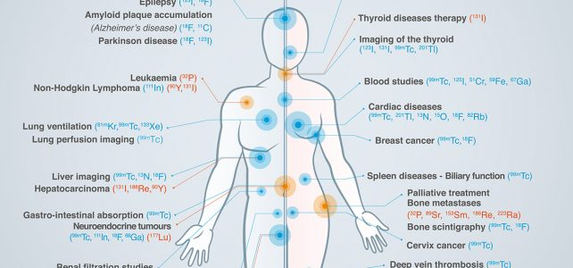 Therapie- und Diagnostikmöglichkeiten mit Radiopharmazie